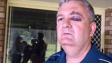 Paramedic Brad Johnson is one the victims of attacks, with 3300 assaults in the past year alone.
