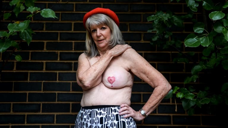 Anne Hulett had a mastectomy on her left breast.