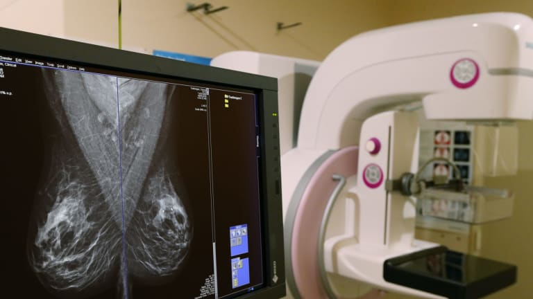 BreastScreen Australia invites women aged between 50 and 74 for a free mammogram every two years.