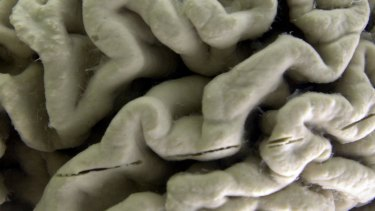 A section of a human brain with Alzheimer's disease.