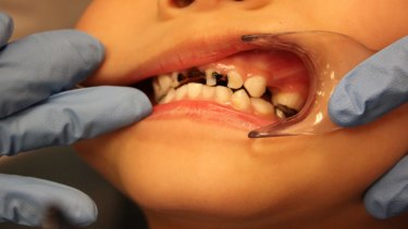 A five-year-old child with extensive tooth decay.