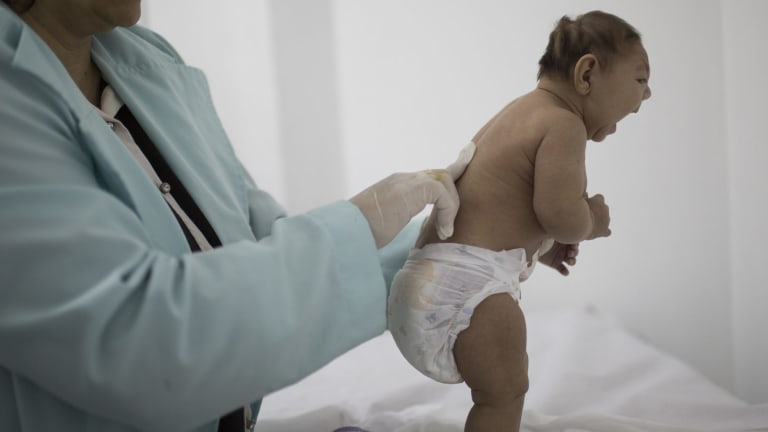 A child with microcephaly in Brazil.