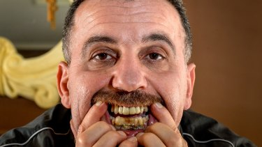 Dhamir Toma, victim of one of the alleged fake dentists.