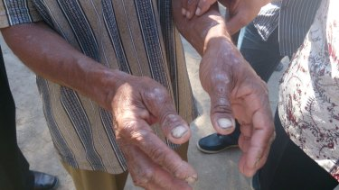 The hands of a man in Indonesia's East Nusa Tenggara province in August 2013. People in the region complain of itchy skin conditions, possibly connected to the spill.