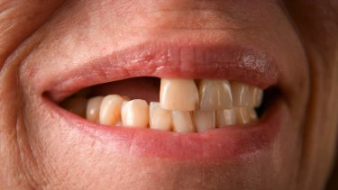 Her original dental implants had cracked and needed to be replaced.