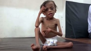 The UN says Yemen will face the world's worst famine in decades if the Saudi-led coalition refuses to lift its blockade on deliveries of aid.