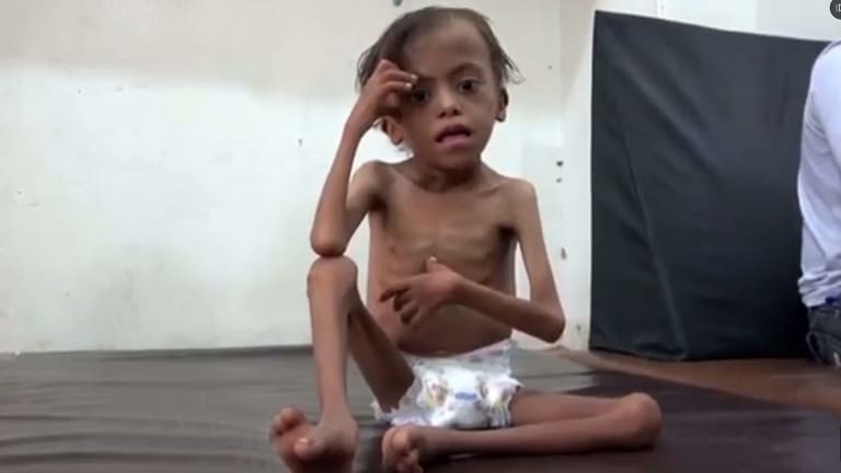 United Nations officials say Yemen will face the world's largest famine in decades if the Saudi-led coalition refuses to lift its blockade on deliveries of aid.