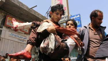 A man carries a boy injured during fighting between pro-government tribal fighters and Houthi rebels in Taiz.