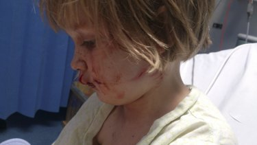 Phoebe Hettinger after the attack.