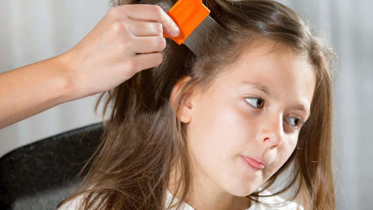 Head Lice Busting The Myths So We Can Nab Those Nits