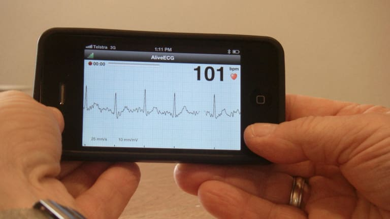 The iECG: an iPhone app developed by the University of Sydney provides a cheap and accurate method of detecting heart rhythm problems.