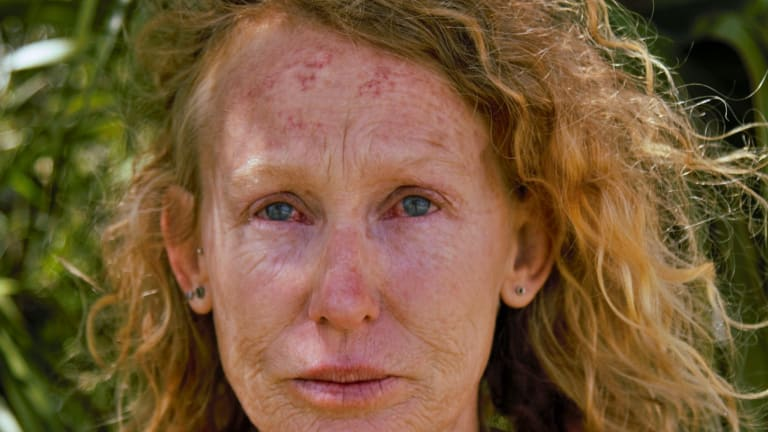 Kerri Tonkin, one of the anti-CSG protesters who says she was pepper-sprayed by police.