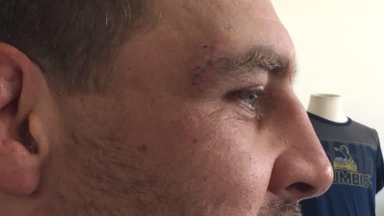 The cut above Josh Mann-Rea's eye.