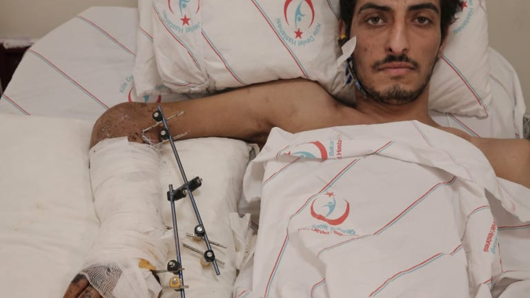 Ejnad Akkad, a fighter for the rebel Free Syrian Army, at a hospital in Kilis, Turkey.