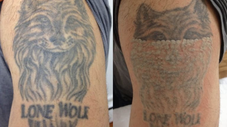 Before and after shots of a tattoo removal at Melbourne Tattoo Removal.