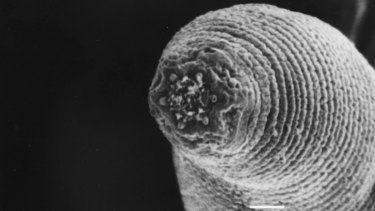 A new species of nematode that scientists discovered in the Beatrix mine.
