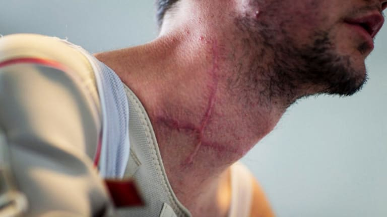 Girdlestone's neck injuries.