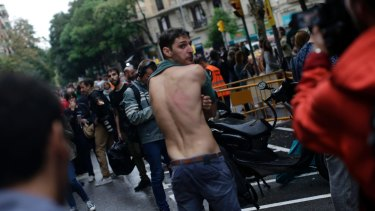 A man shows a bruise on his back allegedly caused by Spanish riot police after clashes near a school assigned to be a polling station.
