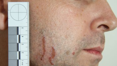 Police photographs of marks on Gerard Baden-Clay's face and body.