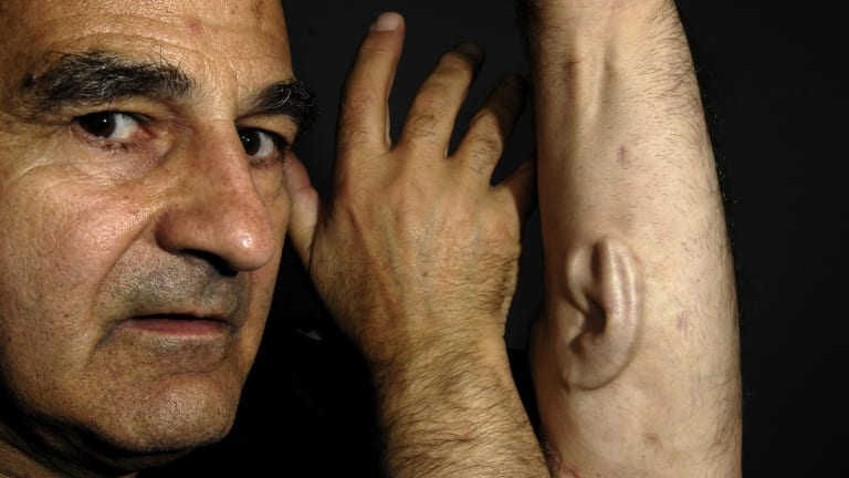 Stelarc with an ear implanted on his arm as part of his 2007 project Alternate Anatomical Architectures.