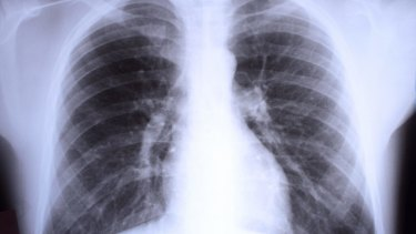 Doctors have been urged to stop ordering routine chest x-rays for children with respiratory and abdominal symptoms.