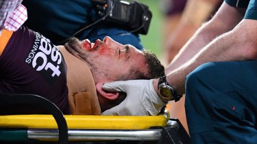 Knock out: Corey Oates leaves the field on a stretcher last Friday night.