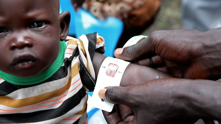 Nyatut was identified as being severely malnourished at The Save the Children feeding centre in Denjuok, South Sudan, last year. Reducing poverty and hunger was a major aim of the Millennium Development Goals.