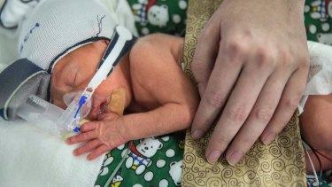 Benjamin Chard in an incubator on the neonatal ICU at RPA.