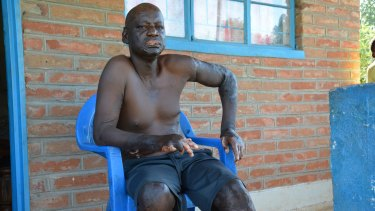 Dangerous mines: Caldwell Sichinga was maimed when a steel tank at the Malawiuranium mine he worked at exploded.