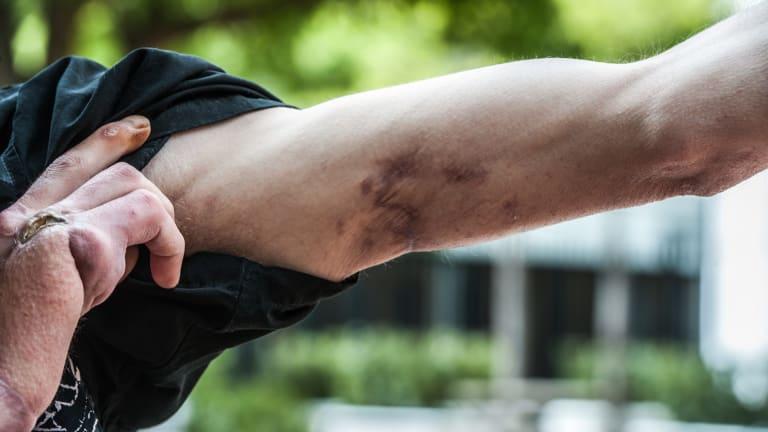 Daniel Meyers' scarred arm.