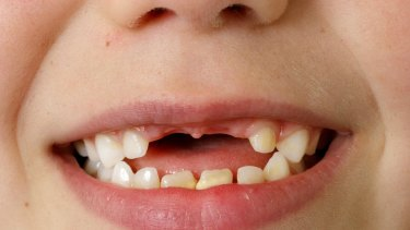 The scheme offering free dental care to children from middle to low income families is under threat.
