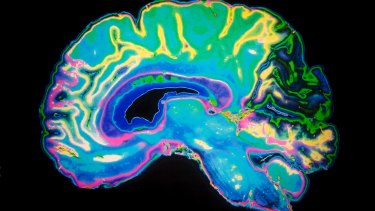 """Scientists have discovered how drugs could attack abnormal """"plaques"""" in the brain."""