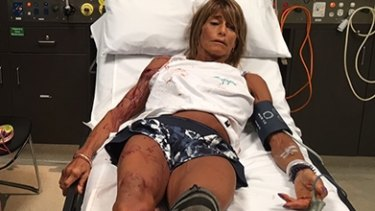 Debbie Urquhart after the kangaroo attack on Saturday.