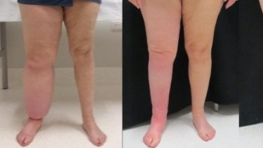 A patient whose right leg is affected by lymphoedema (left) before liposuction and six months after treatment.