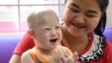 Baby Gammy, with his mum Pattaramon Chanbua, is doing well.