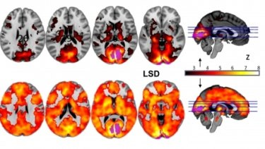 Research from Imperial College London, showing how, with eyes-closed, much more of the brain contributes to the visual experience under LSD (above) than under placebo (top).