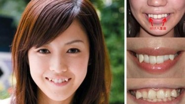 Cute? The snaggletooth trend has been growing in Japan.