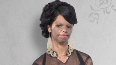 Indian acid attack victim Laxmi as she appears in a new fashion catalog.