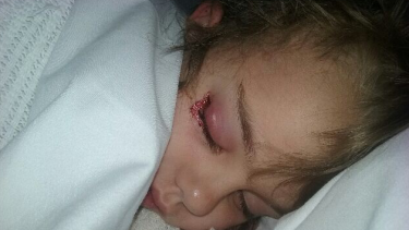 Chelsea Fawcett's family alleges her eye infection was caused by the Elizabeth Quay water park.
