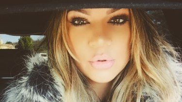 Khloe Kardashian revealed last week that she likes to get her face zapped with lasers to improve her complexion.