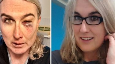 Stephanie McCarthy was left with numerous injuries including a fractured eye socket after the assault.