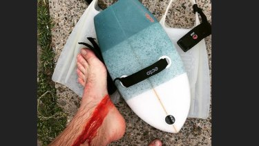 A photo of the bodysurfer's injuries.
