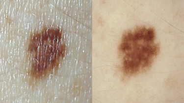 Australia has one of the highest rates of melanoma in the world.