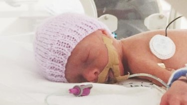 Pearl weighed just 690 grams when she was born and faces a tough few months in hospital.
