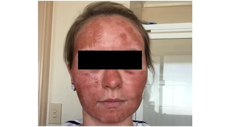 A woman's face the day after she received laser resurfacing treatment from the Lumps & Bumps clinic.