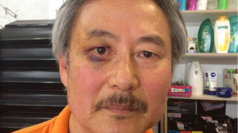 Former Korean Army lieutenant, high school teacher and counsellor Paul Shin shows off a black eye after a vicious attack by a 17-year-old in his general store.