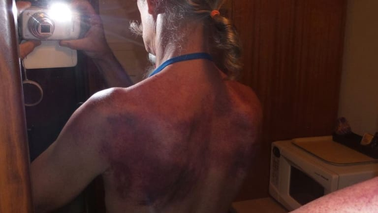A follower shows bruising to his back as a result of slapping, or what Mr Xiao calls paida.