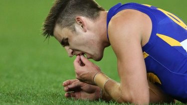West Coast's Elliot Yeo lost part of two front teeth in 2014. He has since re-injured his hand.