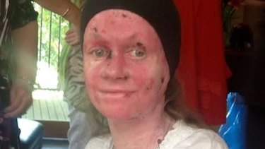 Epidermolysis Bullosa sufferer Kate Turner.
