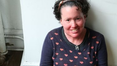 Writer and appearance activist Carly Findlay